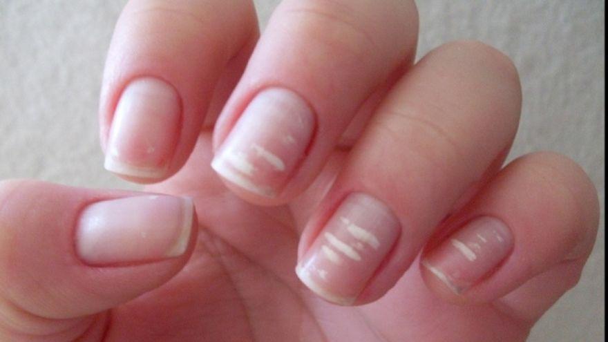 Ai pete albe pe unghii? Fugi repede la medic! Pot fi indiciul unei boli grave