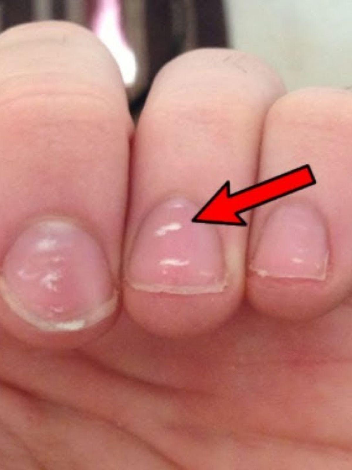 pierdere în greutate pete albe pe unghii