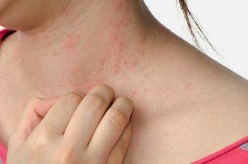 Cum scapi de eczema. Remedii naturale care nu dau gres