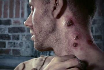 Alerta! Ciuma bubonica in China. Patru persoane infectate intr-o luna de zile