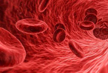 Ateroscleroza – principala cauza a infarctului si accidentului vascular cerebral