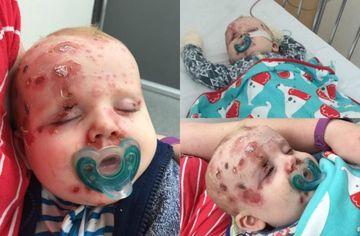 """""""Va implor..."""" Apelul disperat al unei mamici dupa ce fata bebelusului ei s-a umplut de rani si cicatrici"""