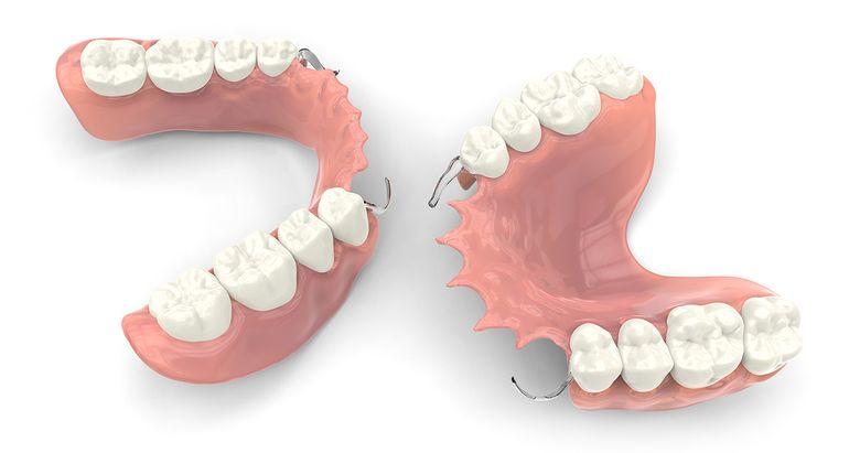 Proteze mobile, punți fixe sau implanturi dentare: care este cea mai bună metodă de tratament pentru înlocuirea dinților lipsă?