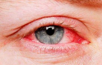 Simptome coronavirus: ochii rosii ar putea fi simptom de coronavirus