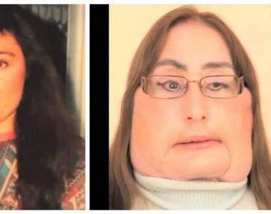 Ea este femeia care a suferit primul transplant de față. Medicii i-au constatat decesul