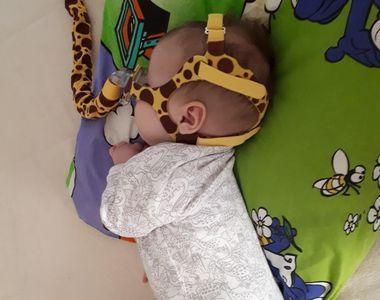 Ea este Alexa. Micuța care a împlinit astăzi 11 luni, dar are nevoie de ajutorul...