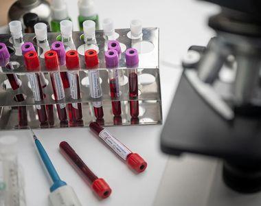 Turcia a început studiul clinic  al unui vaccin experimental chinez pentru noul...