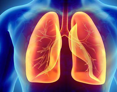 STUDIU: Covid-19 poate cauza probleme la nivelul plămânilor ce se pot descoperi după...