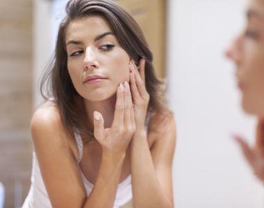 7 sfaturi pentru ingrijirea tenului acneic
