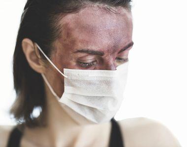 """Ministerul Sănătății: """"Anticorpii anti-COVID-19 sunt prezenţi în organism la 6 şi chiar..."""