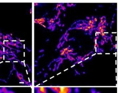 Descoperire incredibilă despre COVID-19. Ar putea fi o afecțiune vasculară, nu...