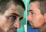Un român a ajuns în stare gravă la spital după ce a fost bătut de mai mulți jandarmi. Avea urme de bocanc pe corp