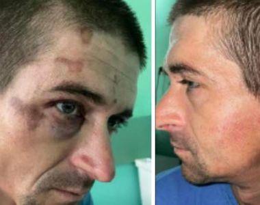 Un român a ajuns în stare gravă la spital după ce a fost bătut de mai mulți jandarmi....