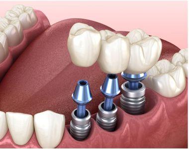 Află cum poți scăpa de frica de implant dentar!