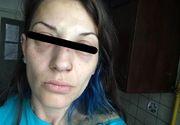 """O tanara din Bucuresti a fost snopita in bataie, in Parcul Cismigiu! """"Am fost lovita foarte tare la nivelul fetei!"""""""