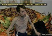 """Barbatul care cantarea 25 de kilograme a inceput sa manance: """"Daca mi-a luat pielea, mi-au cazut si oasele. Acum sunt mai bine"""""""