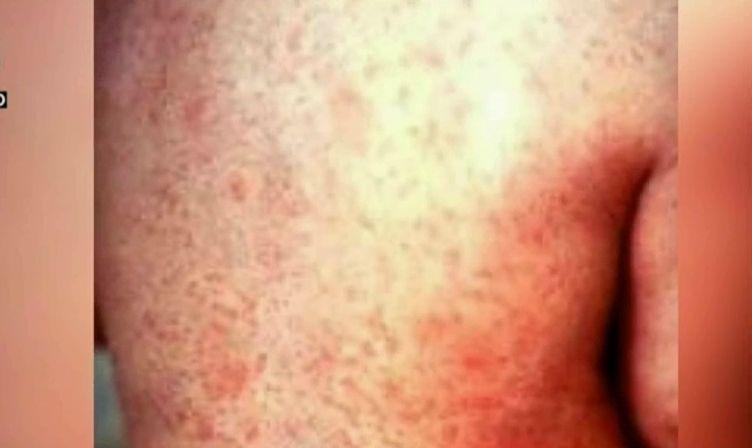 Vestul Tarii Este In Carantina Medicii Au Declarat Epidemie De