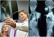 """Marturia medicului german care a consultat zeci de copii operati de medicul Burnei: """"Pur si simplu groaznic"""""""