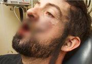 Imagini groaznice. Un barbat a ajuns desfigurat, dupa ce i-a explodat tigara electronica in timp ce tragea din ea