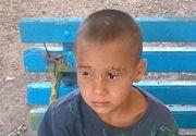 Nevoie urgenta de sange pentru baietelul de 8 ani, atacat de caini. Are nevoie de zeci de operatii pentru a-si reveni