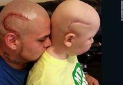 Si-a facut un tatuaj identic cu cicatricea fiului sau, operat pe creier. Ce s-a intamplat cu copilul la un an dupa ce povestea lor a facut inconjurul lumii