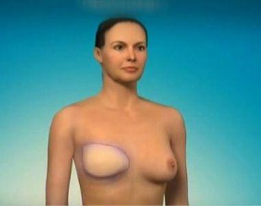 Medicii oncologi trag un semnal de alarma: din 8.000 de femei operate de cancer la san,...