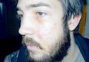 Clipe de groaza pentru un tanar din Cluj. A fost lovit in cap si talharit in apropierea unui popular club din oras