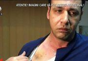 Dezvaluiri socante despre barbatul care a snopit in bataie un medic de la spitalul din Mioveni! Cine este in realitate batausul