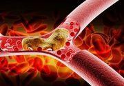 Ceaiuri pentru colesterol marit! Foloseste-te de plantele astea pentru a-ti reduce nivelul colesterolului!