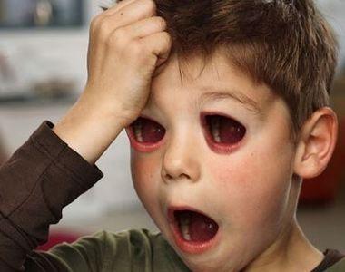 """""""Copiii cu guri in loc de ochi"""" - Imaginile care au socat lumea!"""