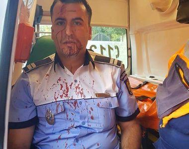 Politistul batut pana la sange de un sofer e sarac lipit! Vezi pentru ce salariu isi...