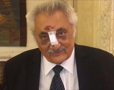 """Deputatul Nicolae Bacalbaşa a apărut cu nasul bandajat în Parlament: """"Nasul, chit..."""