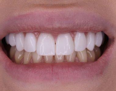 Ultima moda printre tepari: fatetele dentare! Atrasi de mirajul preturilor mici, sute...