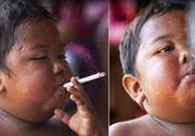 Cum arata acum baiatul care fuma 40 de tigari pe zi