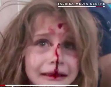 Bombardamente in Siria. O fetita de 8 ani ranita si speriata plange dupa tatal ei.