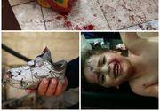 Macel la locul de joaca: 6 copii au murit in Siria, dupa ce gradinita a fost bombardata