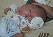 Un bebelus s-a nascut cu doua fete si doua creiere. Mama lui a fost la trei ecografii in timpul sarcinii, insa niciun medic nu a identificat anomalia