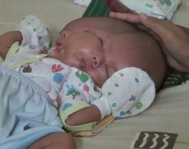 Un bebelus s-a nascut cu doua fete si doua creiere. Mama lui a fost la trei ecografii...