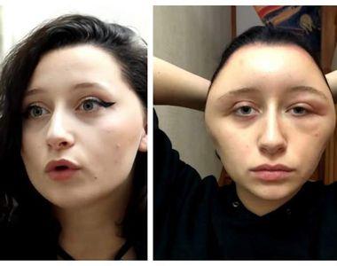 Capul unei tinere s-a deformat într-un mod bizar, după ce a făcut alergie puternică din...