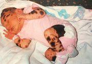 "S-a nascut cu o boala rara de piele si i se spune ""Dalmatianca"". Cum arata acum tanara la 19 ani"