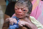O afectiune rara a facut ca un nou-nascut sa aiba aspectul unui batran de 80 de ani. Cu toate acestea, parintii lui sunt bucurosi de venirea pe lume a copilului