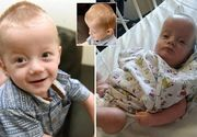 Bebelusul care s-a nascut cu un cap imens, ca al unui adult, poate sa duca de acum o viata normala. El a fost operat cu succes