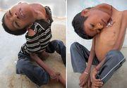 Baiatul din India care s-a nascut cu capul intors la 180 de grade a murit la opt luni dupa operatia care i-ar fi schimbat viata