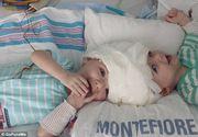 Gemeni nascuti lipiti in zona capului s-au vazut pentru prima data de la nastere. Operatia de separare a durat 27 de ore