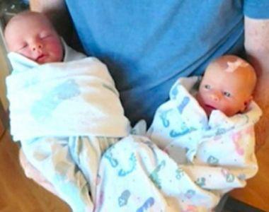 A nascut gemeni identici, dar dupa doi ani a realizat o diferenta infioratoare -...