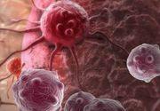 Acesta este cel mai agresiv tip de cancer. Doar 4% din pacienti ii supravietuiesc. Care sunt simptomele care te trimit de urgenta la medic