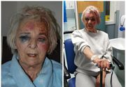 """Am crezut ca mor"". Pensionara, de 82 de ani, strangulata cu lesa de la caine si batuta mar de o femeie, chiar in propria casa"