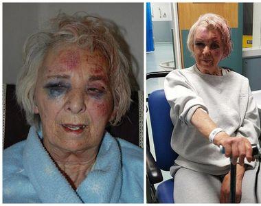 """""""Am crezut ca mor"""". Pensionara, de 82 de ani, strangulata cu lesa de la caine..."""