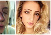 "Dumnezeule, ce cruzime! A batut-o in toaleta unui club pana cand i-a distrus nasul, recent operat: ""Sunt complet devastata"""