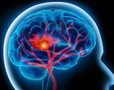 Ai simptomele astea? Inseamna ca ai facut un accident vascular cerebral. Acestea sunt...